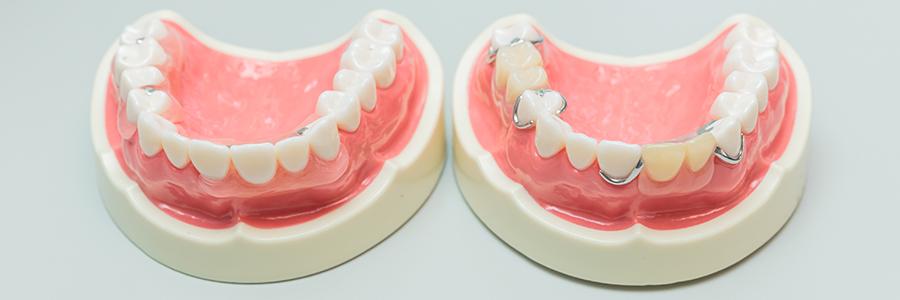 選択肢2 入れ歯