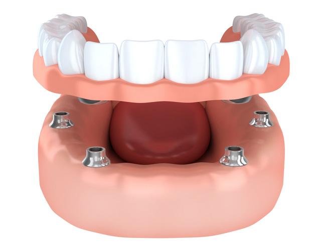 インプラントを併用した入れ歯(インプラントデンチャー)