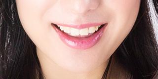 審美歯科対応一覧